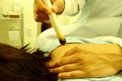 不妊の鍼灸治療・治療